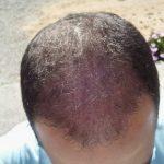 Trapianto di capelli e trattamento con cellule staminali