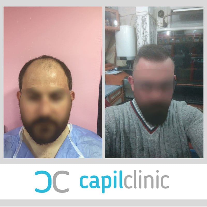 trapianto turchia CapilClinic