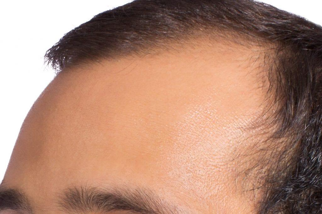 trapianto dei capelli