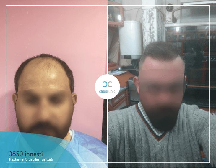 Risultato del trapianto di capelli : dopo 12 mesi