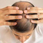 Come nascondere gli interventi sull'impianto dei capelli?