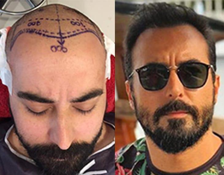 impianto di capelli prima e dopo