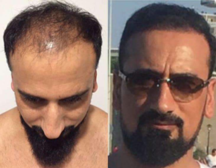 risultato prima e dopo