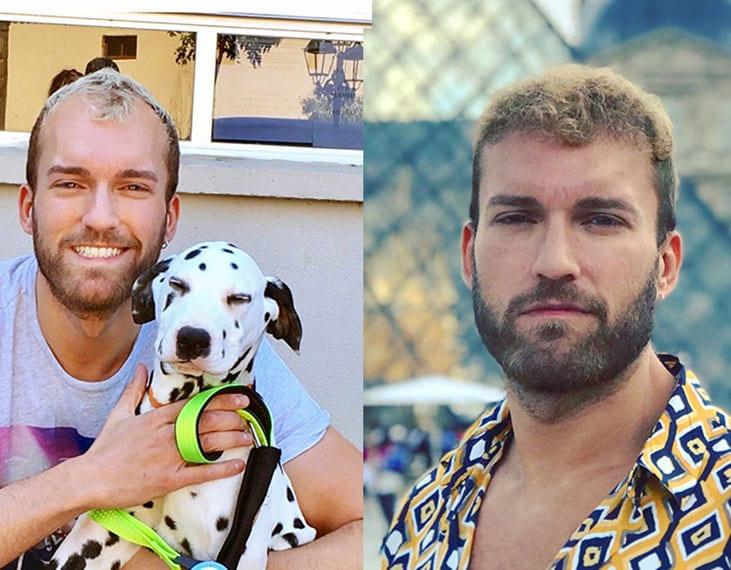 risultato prima e dopo l'innesto di capelli