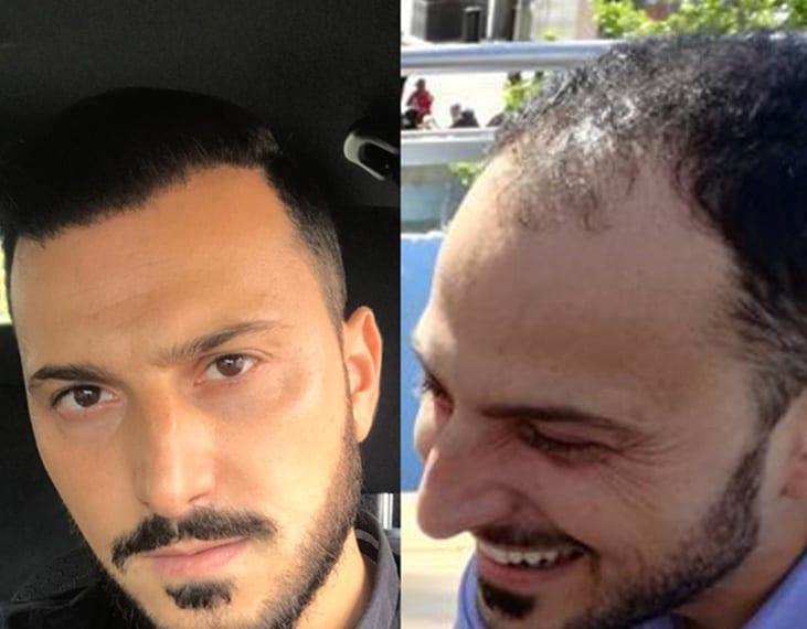 risultato prima e dopo trapianto di capelli