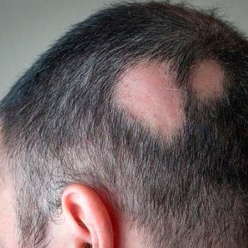 alopecia areata trattamento calvizie