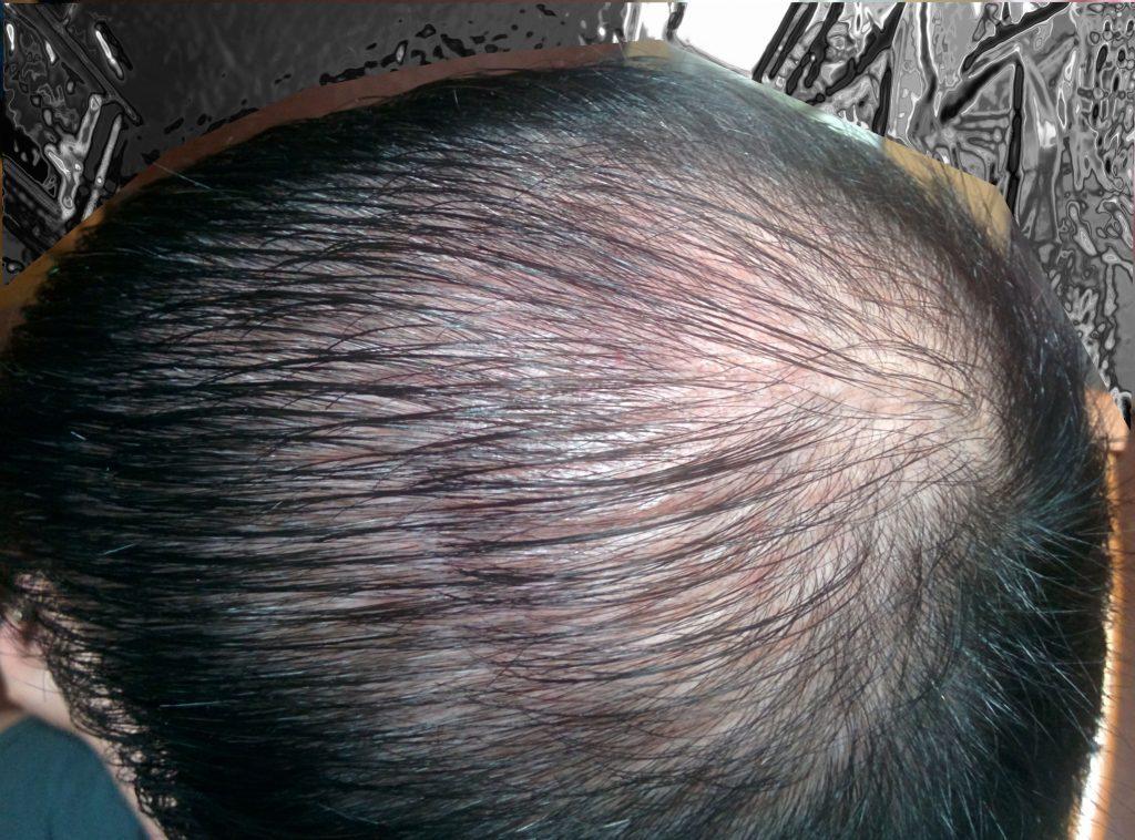 indebolisce capelli