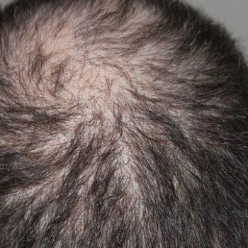 recensioni capelli