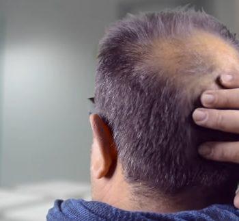 Conseguenze alopecia