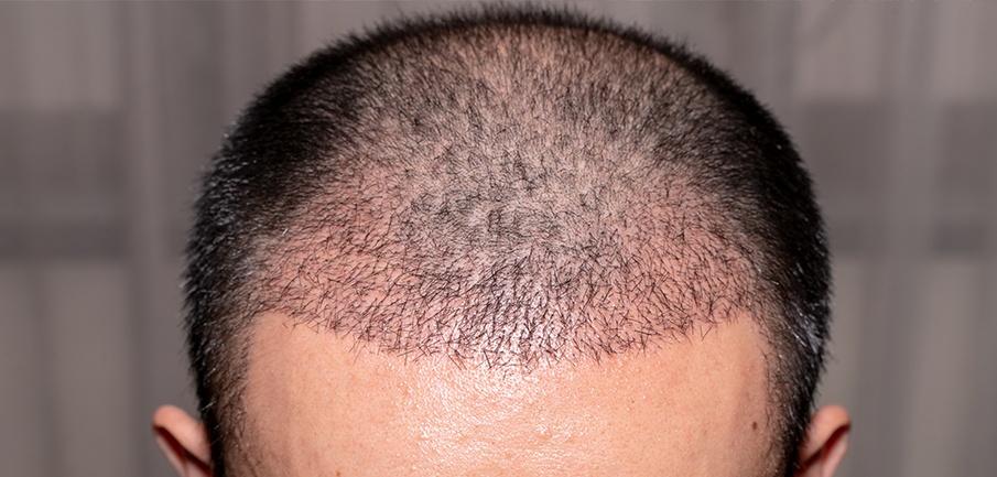 Innesto di capelli per 1 mese