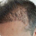 Come dormire dopo un trapianto di capelli