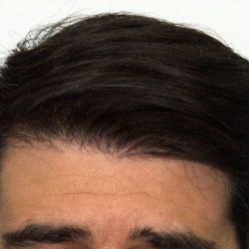 crecono capelli