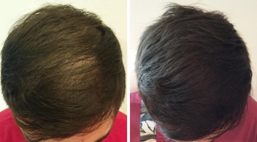 fasi trapianto capelli
