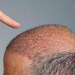 Trapianto di capelli per persone senza capelli