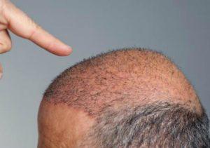 graft bald