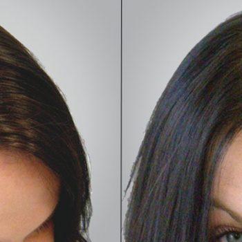 graft de capelli donna tacchino
