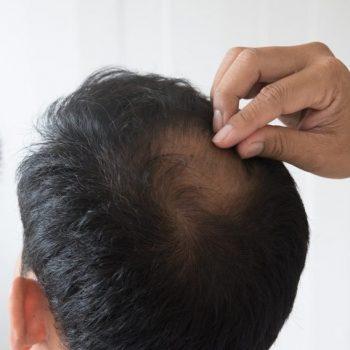 trapianto capelli prezzi