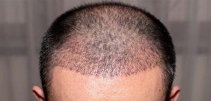 type baldness