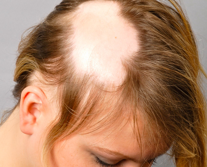 tipi alopecia